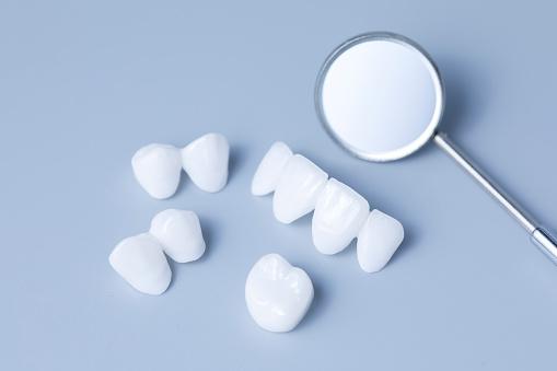 Dental Spiegel Und Zirkon Zahnersatz Auf Einem Hellen Hintergrund Keramikveneers Lumineers Blau Stockfoto und mehr Bilder von Ausrüstung und Geräte