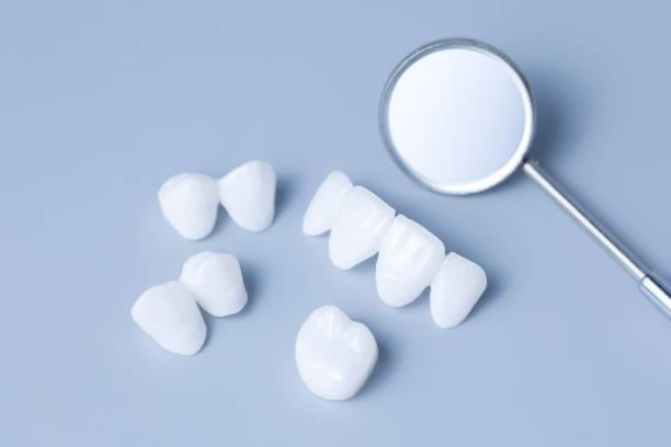 dental spiegel und zirkon zahnersatz auf einem hellen hintergrund - keramik-veneers - lumineers blau - menschlicher zahn stock-fotos und bilder