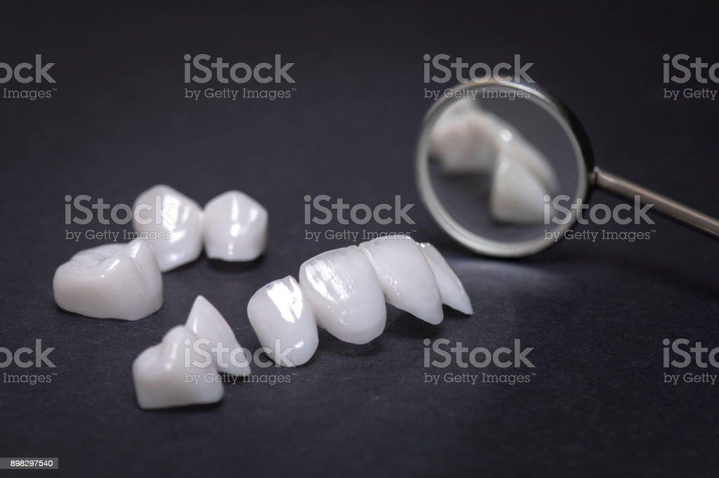 Miroir dentaire avec prothèses zircon sur un fond sombre - facettes en céramique - lumineers - Photo