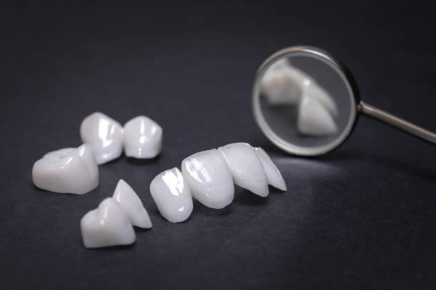 espelho dental com próteses de zircônia sobre um fundo escuro - revestimentos cerâmicos - lumineers - porcelana - fotografias e filmes do acervo