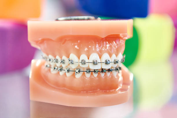 Dental model of the human jaw with braces stock photo
