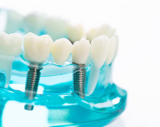 Dental model on white background stock photo