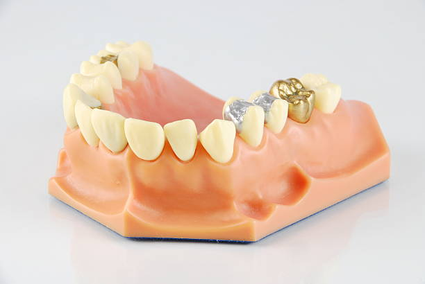 Dental model (with different treatments) stock photo