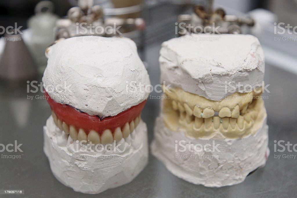 Dental model royalty-free stock photo