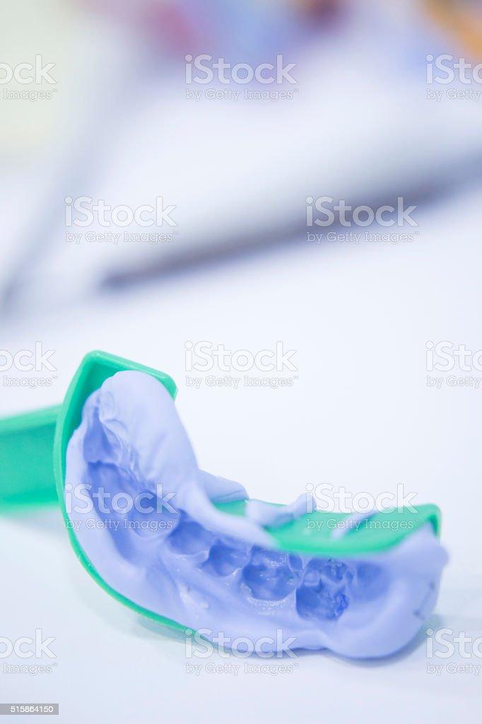 Dental mold dental impression plate stock photo