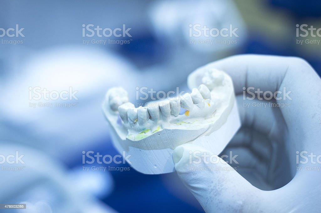 Dental mold dentist clay teeth ceramic plate model cast stock photo