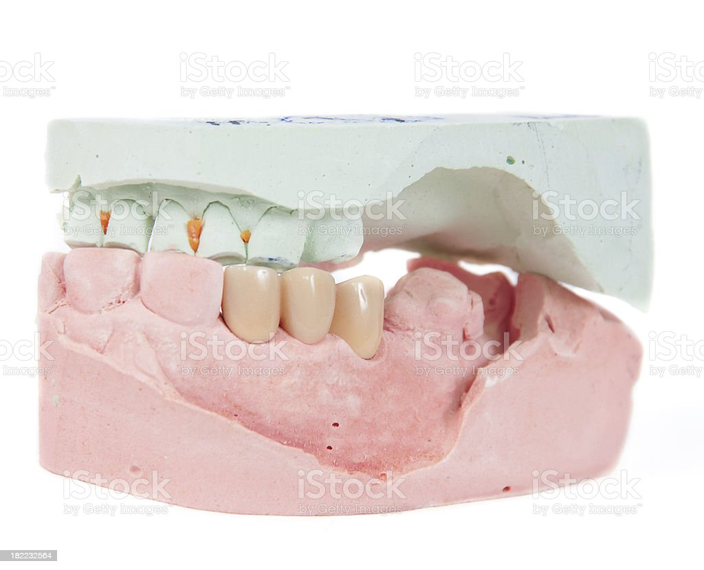 Dental Mold Stock Photo - Download Image Now - iStock