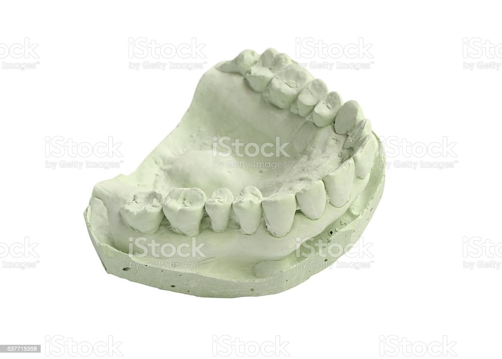 Dental Mold Stock Photo & More Pictures of Cut Out - iStock