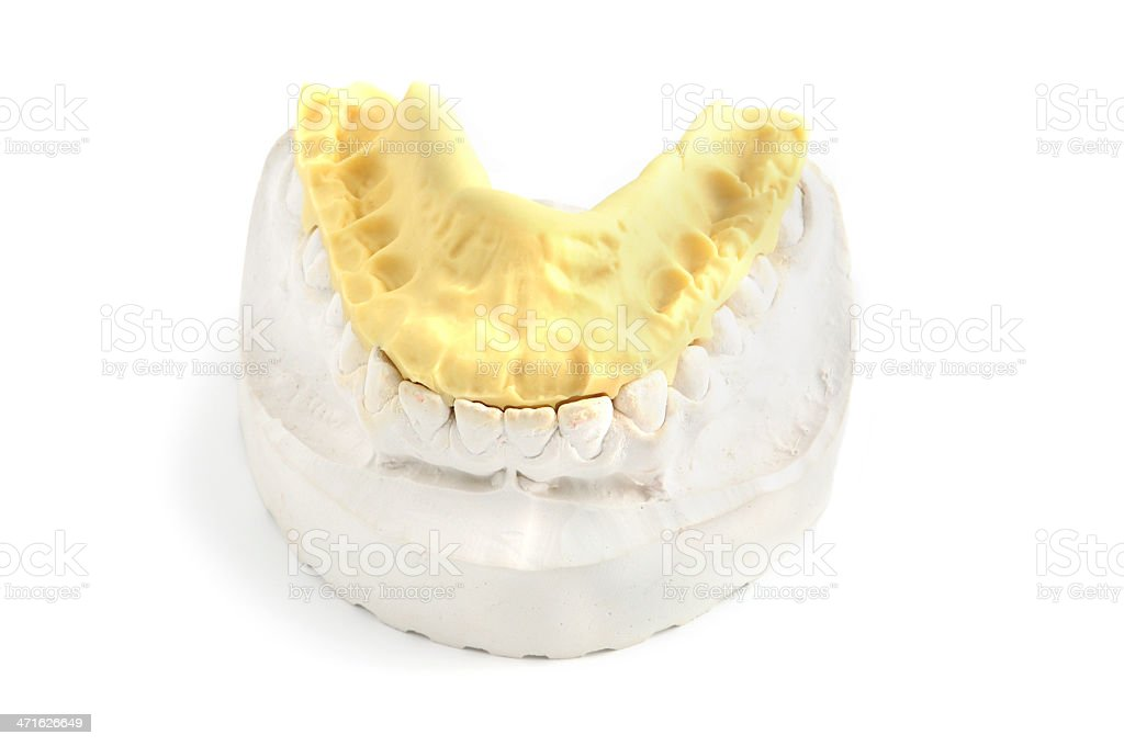 dental mold with a braces isolated on white stock photo