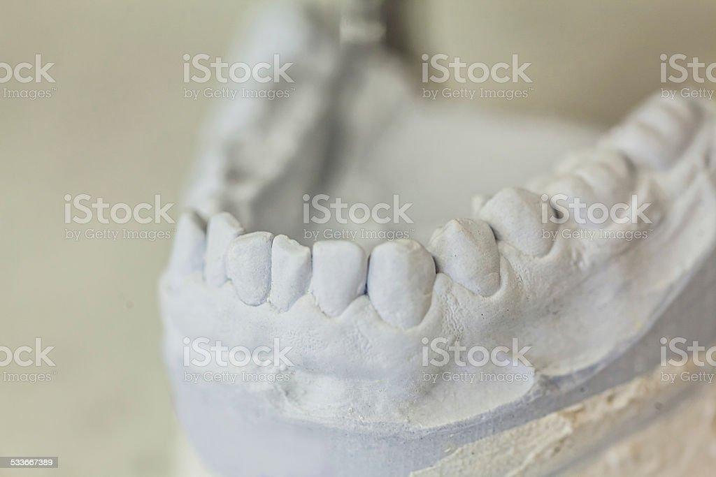 Dental Molds of Human Teeth stock photo