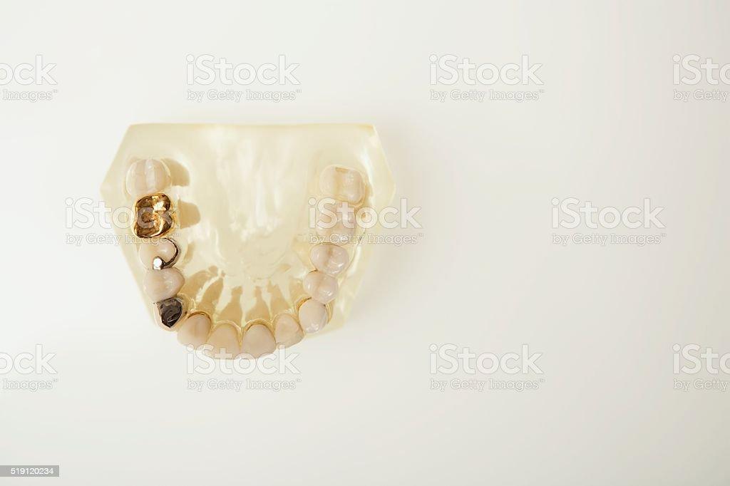 Dental molds stock photo