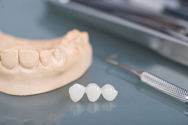 Dental objects with teeth and molds stock photo