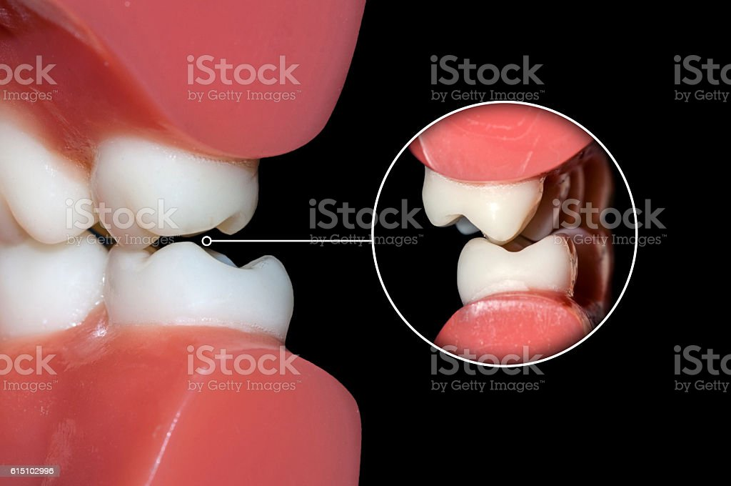dental occlusion molars teeth close up stock photo