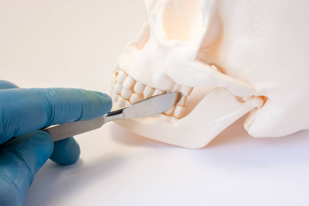 foto de concepto de cirugía dental, bucal y maxilofacial. mano enguantada cirujano con el bisturí está cerca de los dientes de la mandíbula superior e inferior, que simboliza una cirugía dental o intervención en área oral o maxilofacial - mandibula fotografías e imágenes de stock