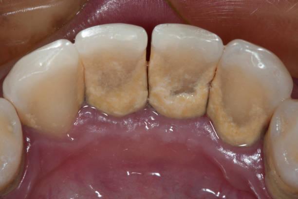 Dental plaque stock photo