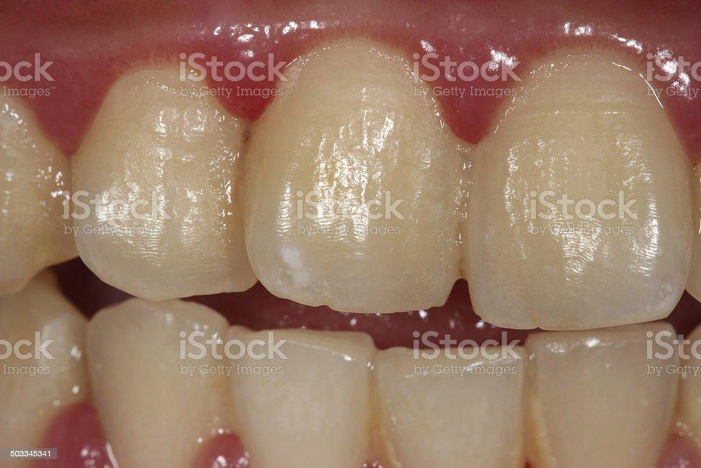 dental plaque. stock photo