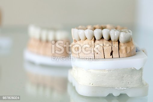 istock Dental Porcelain Prosthesis Implant Tooth in Dentist 937826024