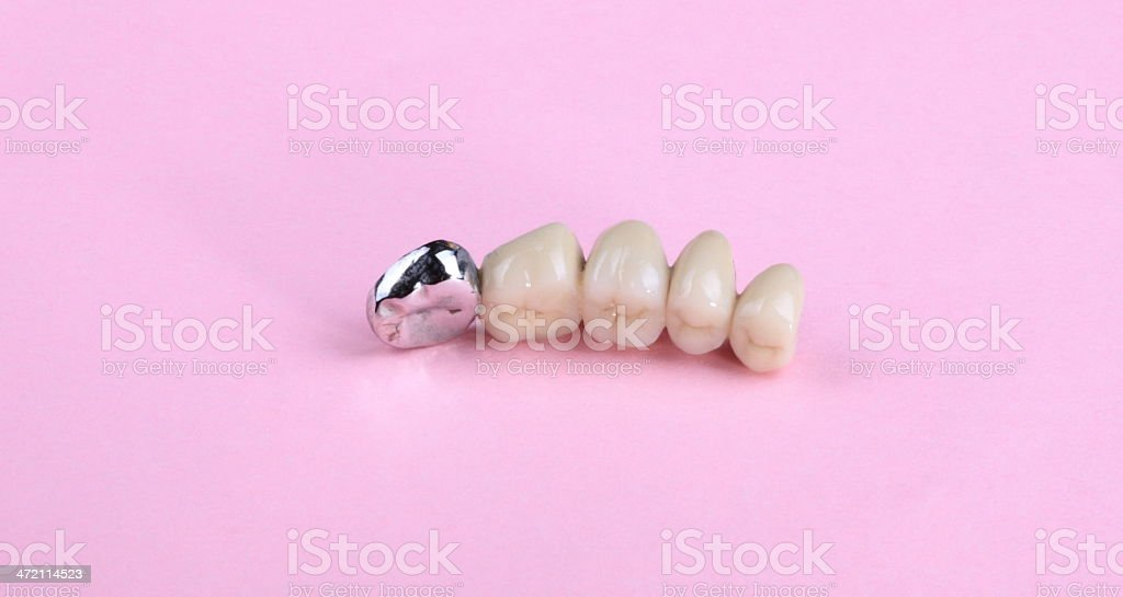 dental prosthesis on pink background stock photo