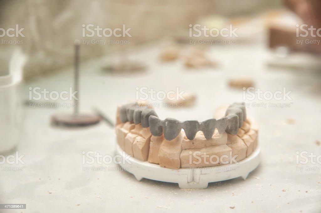 Dental prosthesis royalty-free stock photo