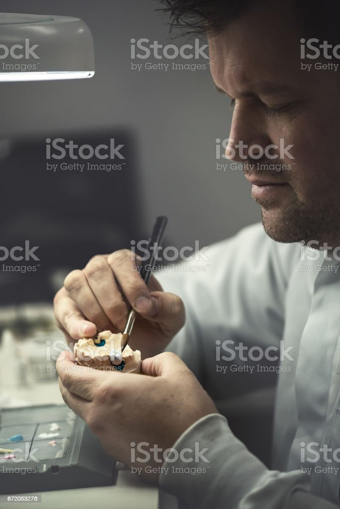 Dental Prosthesis stock photo