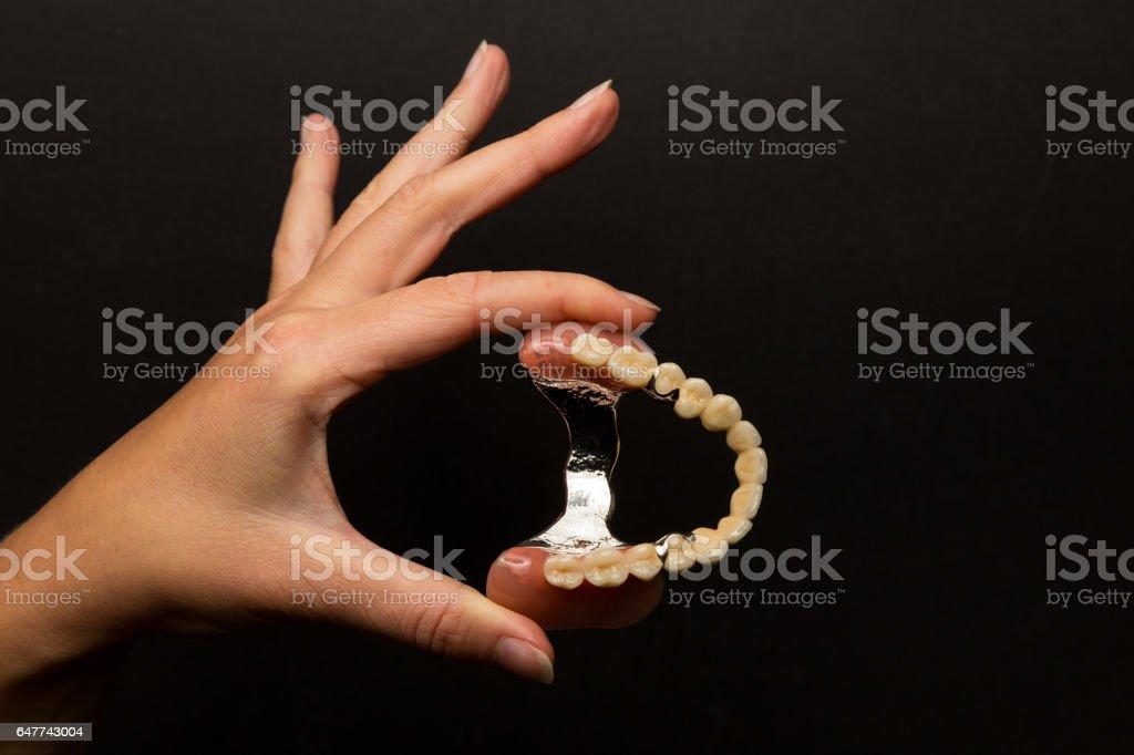 Prothèses dentaires présenté sur place - Photo