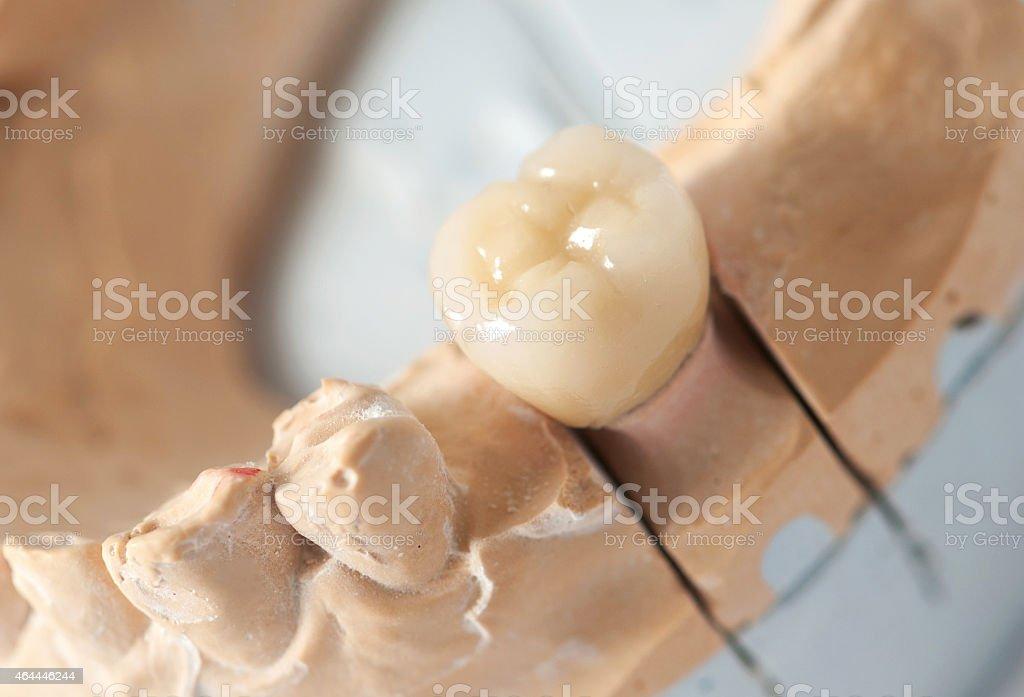 Dental prothetic stock photo