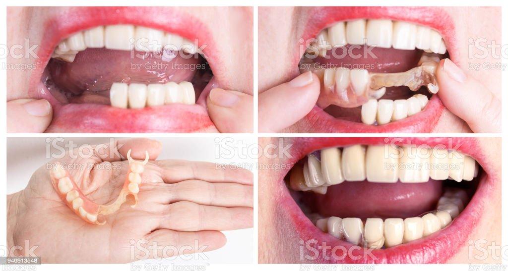 553857498dde Reabilitação dentária com prótese superior e inferior, antes e após o  tratamento foto de stock