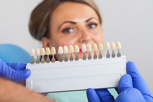 Dental Shade Determination Stock Photo - Download Image Now