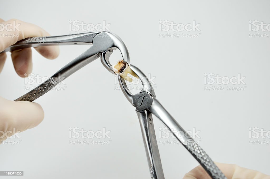 Dental Surgical Tooth Extraction Forceps Hold The Removed Tooth In The Hands Of The Dentist Surgeon Stock Photo Download Image Now Istock