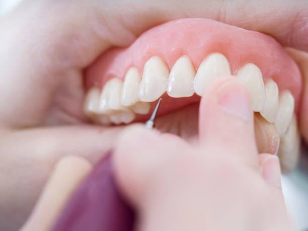 tandteknikern arbetar med porslin tänder i en cast molde i tandtekniskt laboratorium - tandprotes människotänder bildbanksfoton och bilder