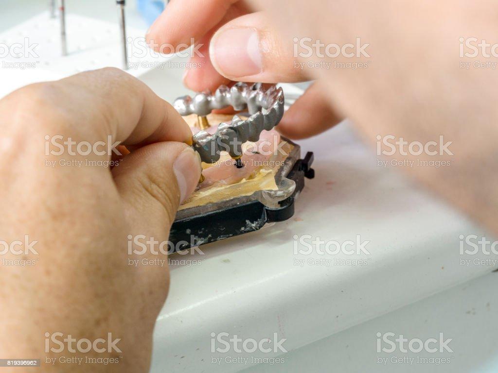Technicien dentaire faisant une structure métallique d'une couronne ou le bridge dentaire. - Photo