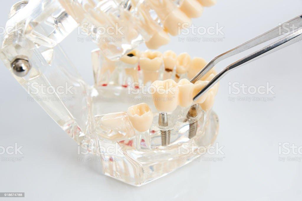 Technicien dentaire placer la prothèse partielle fixe - Photo