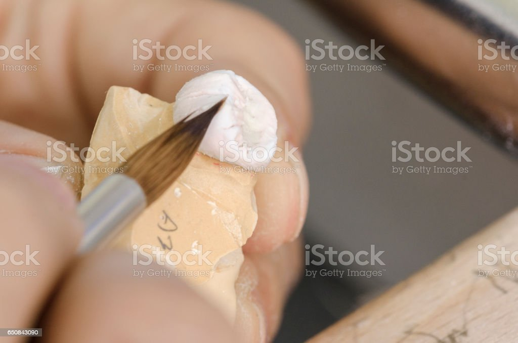 Dental technician putting a ceramic tooth in a dental cast model. stock photo