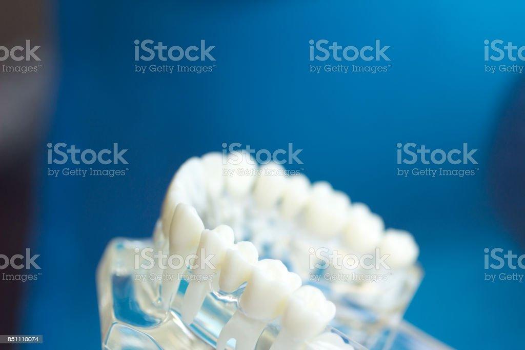 Dental dentes boca dentistas ensino modelo com dentes, gengivas, molares e dente do siso. - foto de acervo