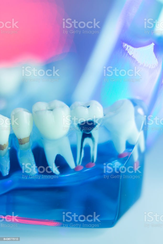 Dental teeth, mouth, gums dentists teaching model stock photo