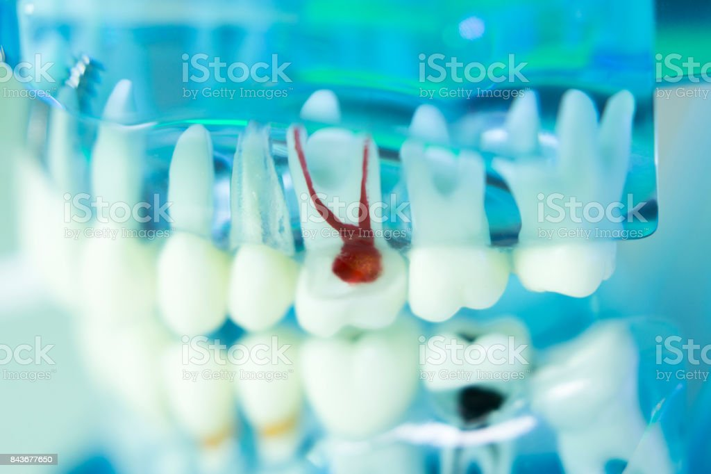 Dental teeth, mouth, gums dentists teaching model stock photo