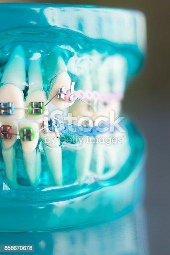 istock Dental teeth retainers metal aligners brackets to straighten teeth in orthodontic dentistry treatments. 858670678