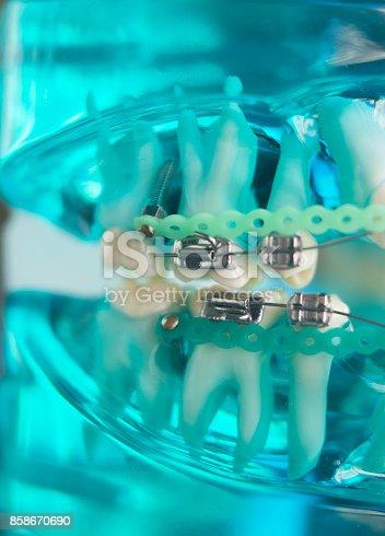 istock Dental teeth retainers metal aligners brackets to straighten teeth in orthodontic dentistry treatments. 858670690