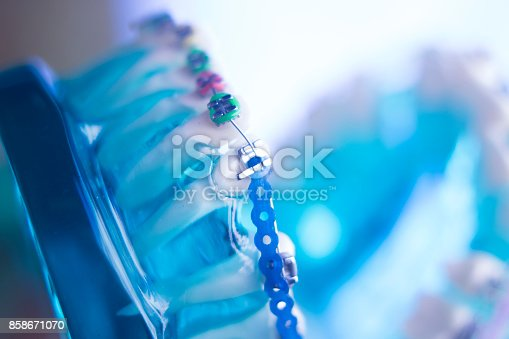 istock Dental teeth retainers metal aligners brackets to straighten teeth in orthodontic dentistry treatments. 858671070