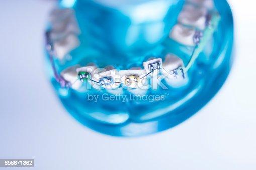 istock Dental teeth retainers metal aligners brackets to straighten teeth in orthodontic dentistry treatments. 858671362