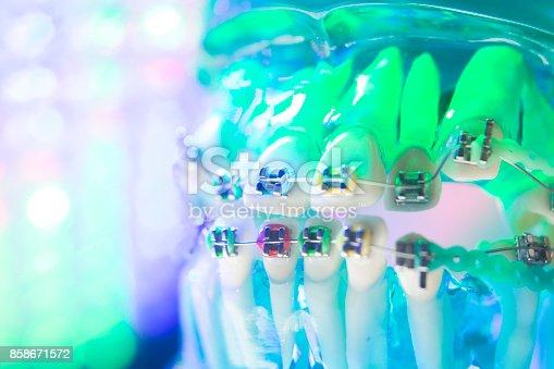 istock Dental teeth retainers metal aligners brackets to straighten teeth in orthodontic dentistry treatments. 858671572