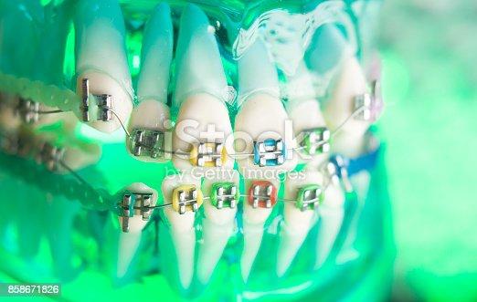 istock Dental teeth retainers metal aligners brackets to straighten teeth in orthodontic dentistry treatments. 858671826