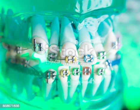 istock Dental teeth retainers metal aligners brackets to straighten teeth in orthodontic dentistry treatments. 858671836