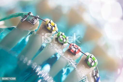 istock Dental teeth retainers metal aligners brackets to straighten teeth in orthodontic dentistry treatments. 858674398