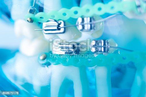 istock Dental teeth retainers metal aligners brackets to straighten teeth in orthodontic dentistry treatments. 858675178