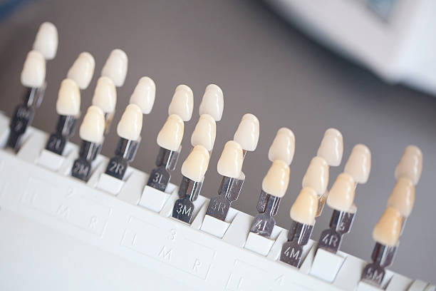 Royalty Free Tooth Color Chart Pictures Images And Stock Photos