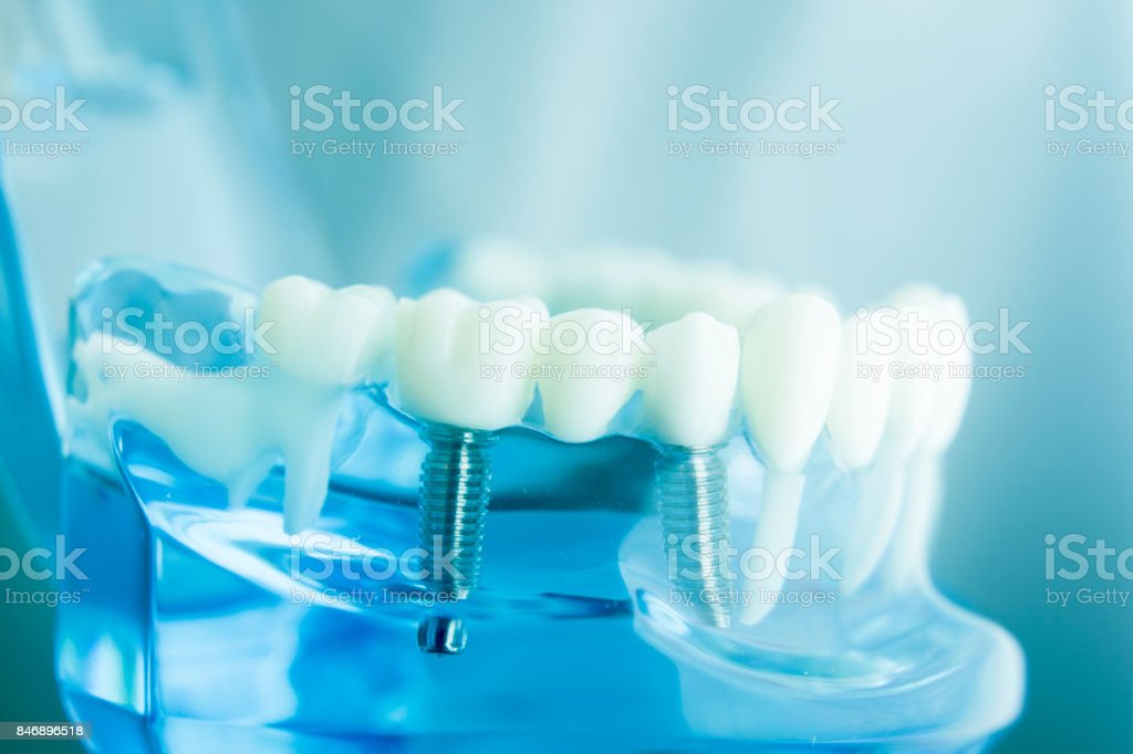 Dental tooth dentistry student learning teaching model showing teeth, roots, gums, gum disease, tooth decay and plaque. stock photo
