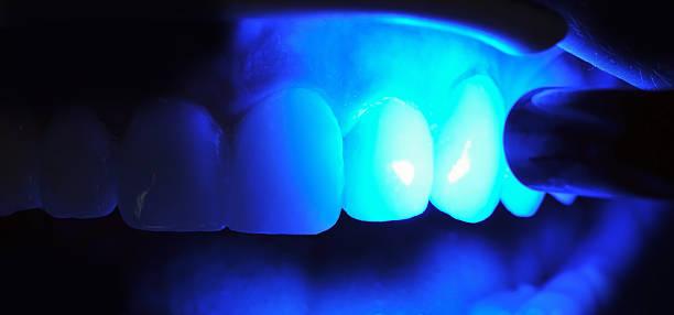 Zahnärztlichen Behandlung – Foto