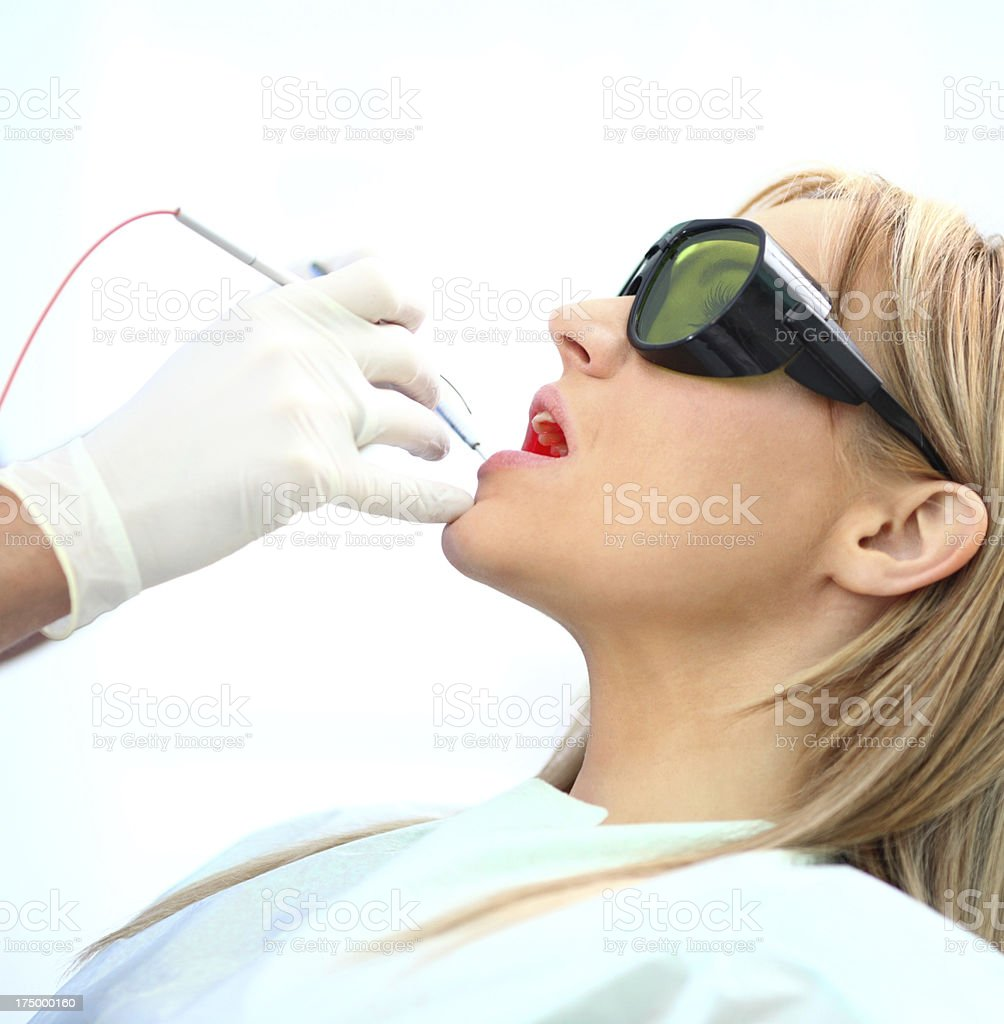 Dental treatment with laser. stock photo