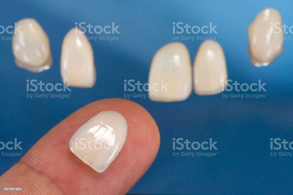 Dental Veneer on Finger stock photo